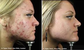 blue light for acne side effects lustre pure light technology my health my beauty