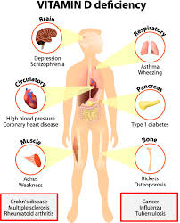 11 vital signs and symptoms of vitamin d deficinecy