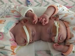 formerly conjoined released from hospital in time for