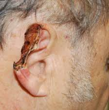 cancer of the ear cartilage rhinoplasty new jersey skin cancer post mohs surgery before and