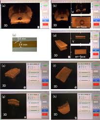 osa spectral domain optical coherence tomography of multi mhz a