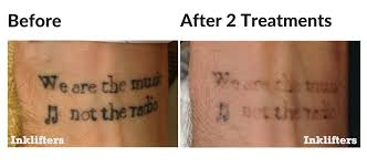 tattoo removal frequently asked questions laser tattoo removal inklifters