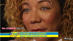 tiny color tiny defends controversial eye coloring surgery on good morning