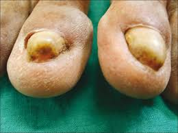 study of nail changes and nail disorders in the elderly rao s