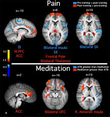 brain mechanisms supporting the modulation of pain by mindfulness