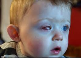 What Was The Cause Of Ray Charles Blindness Toddler Left Blind In One Eye After Drone Propeller Sliced His