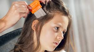 how to wear hair behind the ears headlice everything you don t want to know
