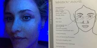 eyes sensitive to light treatment dry under eyes how to treat dehydrated eyes look like and how to