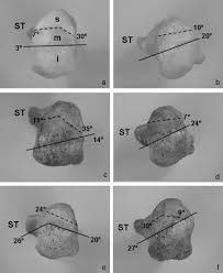 Anatomy Of The Calcaneus Clinical Anatomy Of The Calcaneal Tuberosity Sciencedirect