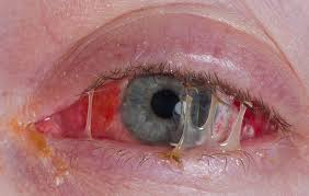 pinkeye symptoms treatment and overview s health