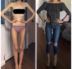 Anorexia Meme - put me like the difference of one year in recovery from anorexia