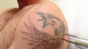 laser tattoo removal youtube