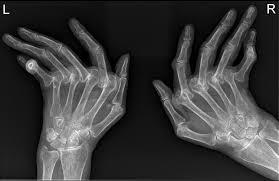 psoriatic arthritis dip erosions radiology at st vincent u0027s