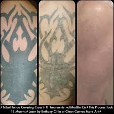 specializing in tattoo removal cleancanvasmoreart instagram