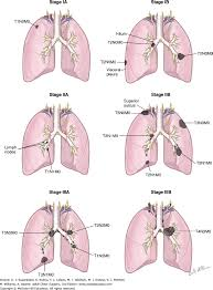 Anatomy And Physiology Of Copd Overview Of Anatomy And Pathophysiology Of Lung Cancer