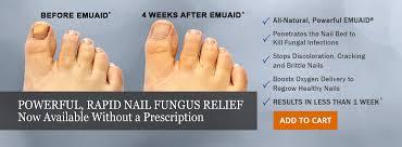 how i healed my nail fungus read my story