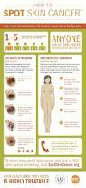 Mole Map How To Check A Mole On Your Skin For Skin Cancer Business Insider