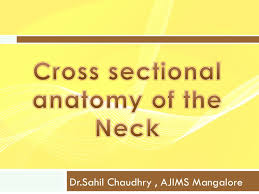 Ct Anatomy Of Brain Ppt Cross Sectional Anatomy Of The Neck