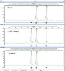 softgenetics software powertools for genetic analysis