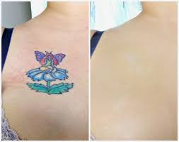 tattoo camo before and after 29 best skin camouflage before and after images on pinterest veil