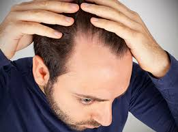 images of hair international society of hair restoration surgery for hair loss