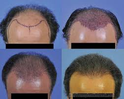 hair transplant month by month pictures patient details