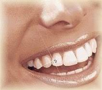 diamond stud in tooth teeth jewelry diamond teeth dental research