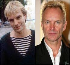 sting hair transplant 50 famous men who have done plastic surgery ritely