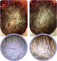 evidence hair prp
