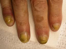nail toxicity related to taxanes escholarship