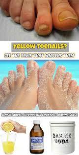 best 10 fungus toenails ideas on pinterest toe fungus cure toe