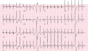 abnormal electrocardiographic findings in athletes recognising