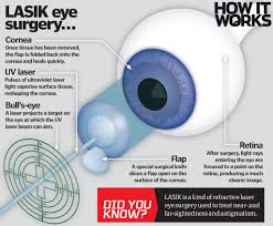 how does laser eye surgery work how it works magazine
