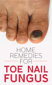 toenail fungus home remedies for better looking nails the 25 best toe fungal infection ideas on pinterest best fungal