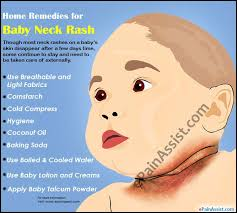 causes home remedies for baby neck rash
