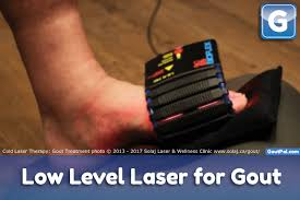 the nuts and bolts of low level laser light therapy gout laser therapy research timeline goutpal gout facts