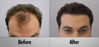 hair plugs for men hair transplant photo gallery before after pictures