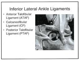 Anterior Fibular Ligament Radiology Cases Lateral And Medial Ankle Ligaments