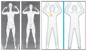 tsa security are airport body scanners safe time