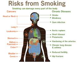 Illnesses That Cause Blindness Health Effects Of Tobacco Wikipedia