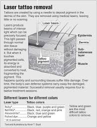 information graphic about laser tattoo removal with links to