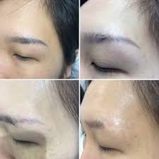 cosmetic tattoo removal in melbourne doff u0026 flux