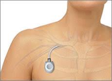 chambre implant馥 pour chimio chambre implant馥 pour chimio 6 images lyme sepas triste la