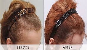 camaflouging headbands for receding forhead hair transplant surgery for a slightly receded hairline hair