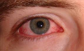 What Causes Eye Blindness Facts About Pink Eye National Eye Institute