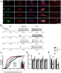episodic ataxia type 1 mutations differentially affect neuronal