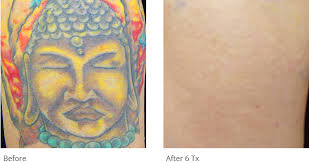 tattoo removal before u0026 after photos tattoo removal patient results