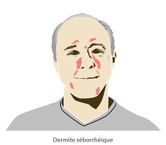 dermite du siege dermite séborrhéique physiopathologie clinique et diagnostic à