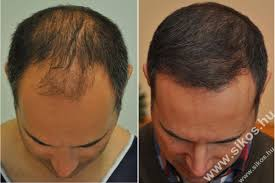 hair transplant for black women hair transplant expert in budapest hungary dr sikos