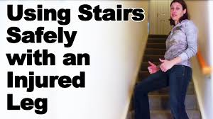 Pain Climbing Stairs by Going Up U0026 Down Stairs Safely With An Injured Leg Ask Doctor Jo